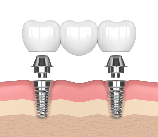 Dental Implants Lake Forest, CA